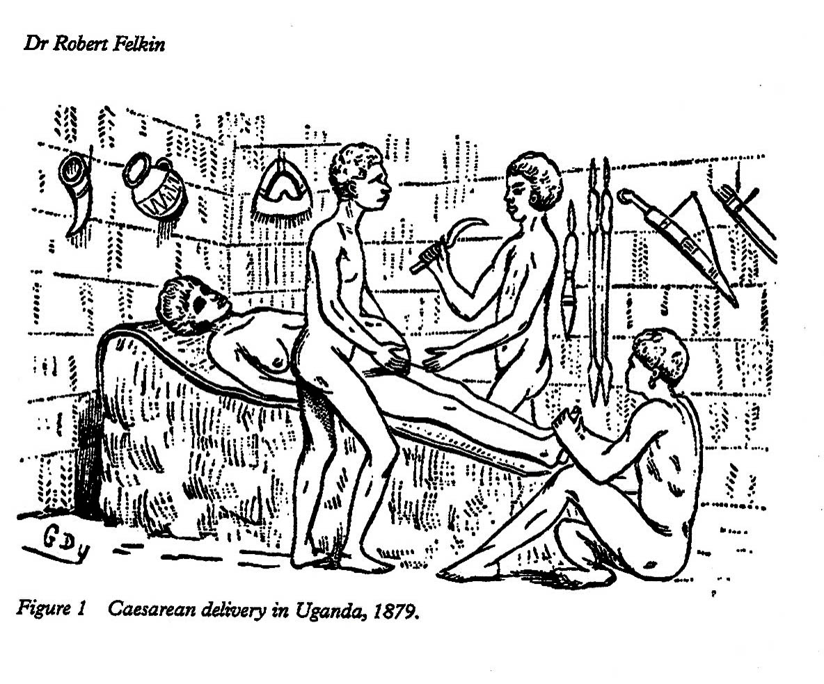 Caesarean delivery Buganda 1879-2
